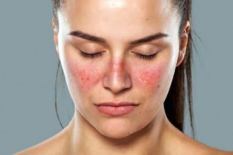 tratamiento-para-el-lupus