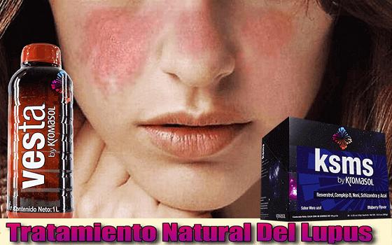tratamiento-natural-para-el-lupus