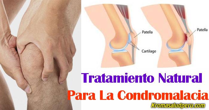 Tratamiento-Natural-Para-La-Condromalacia