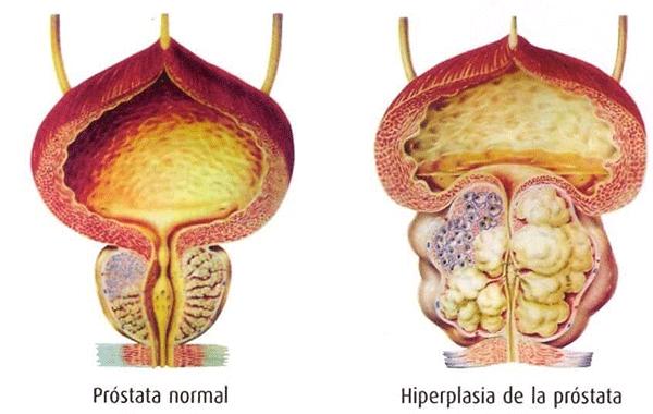 Sintomas-de-la-Prostata-Inflamada